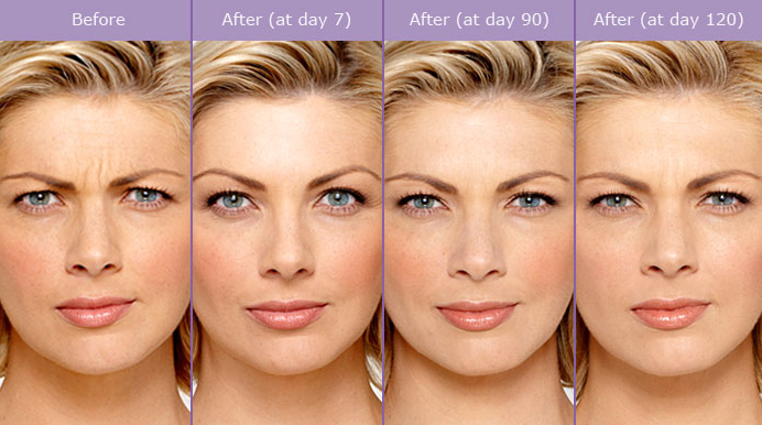 Botox Before And After Photos | Tribeca MedAesthetics