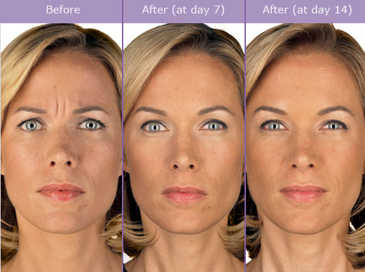 Botox Before and After Photos Miami Beach | South Beach Wrinkle ...