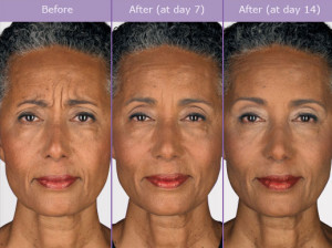 Botox Before After Photos
